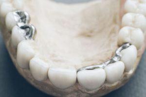 歯のかぶせ物
